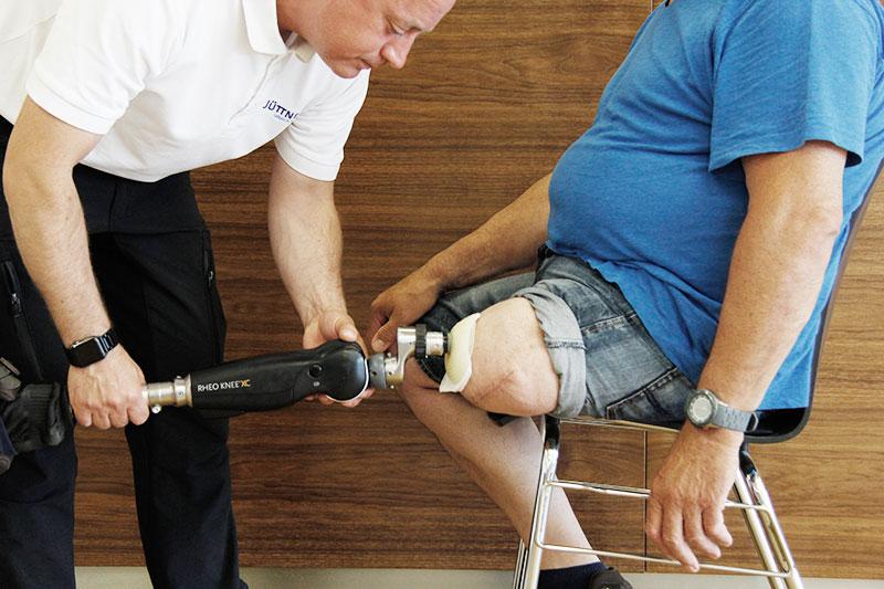Ist die Endo-Exo-Prothese eine Alternative für Oberschenkelamputierte?